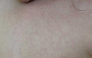 Красные прыщи на груди у ребенка