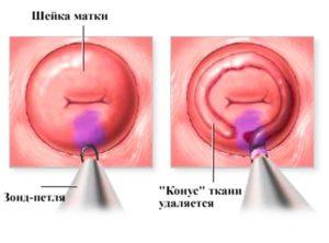 Конизация шейки матки и киста копчика