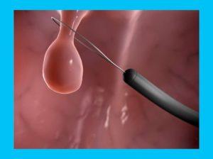Лечение и удаление полипа при планировании беременности