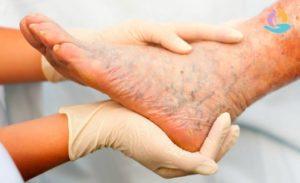 Красные язвы на коже рук и ног болят