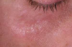 Кровавый пузырь под кожей на лице