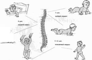 Хруст позвоночника у трехмесячного ребенка