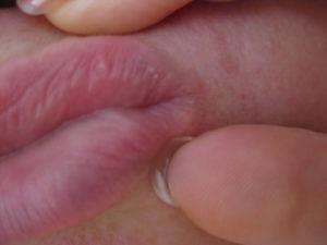 Маленькая дырочка на слизистой половых губ. Похожа на выдавленный прыщ