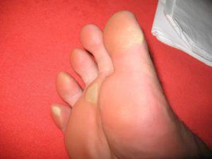 Болит палец натерла