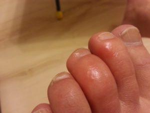 Красные прыщики между пальцами ног