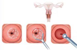 Кровянистые выделения после биопсии шейки матки