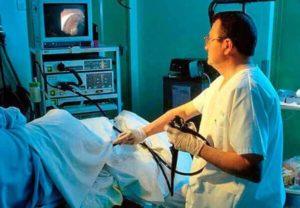 Колоноскопия биопсия стекла