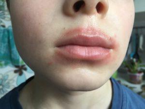 Красное пятно между верхней губой и носои б