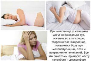 Лечение молочницы на 11 неделях беременности