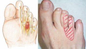 Болит палец безымянный на правой ноге при ходьбе, обувь свободная
