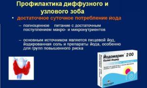Лечение узлового зоба с помощью гомеопатии