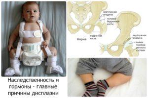 Легкая дисплазия тазобедренных суставов
