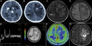 Кальцинаты в головном мозге