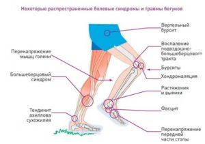 Болит выше колена при прыжке