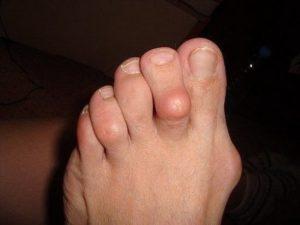 Болезненное образование на пальце ноги