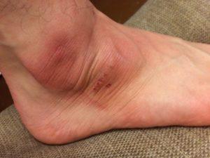 Болячка на ноге, белая корочка