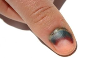 Кровь из под ногтя