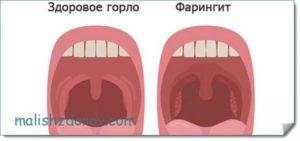 Красное горло уже месяц