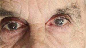 Болит глаз, мутное изображение картинки