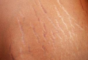 Борозды на коже