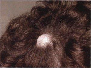 Маленькая шишка на голове, на которой не растут волосы
