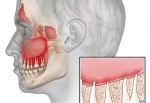 Кровь с гноем из пазухи после лечения канала верхнего 7 зуба