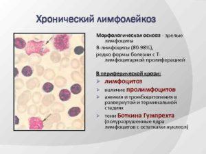 Боюсь лейкоза, лимфомы-анализ