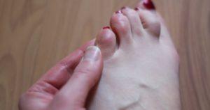 Болячки в виде мозолей на ступнях, руках, между пальцев!