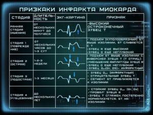 Как прочитать кардиограмму ЭКГ