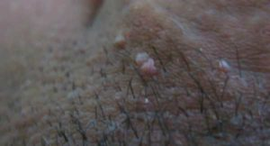 Кровяные скопления под кожей члена
