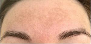Пигментные пятна после уколов железа