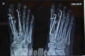Лечение перелома 5ой пятипястной кости стопы