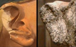 Перелом/трешина в хряще уха