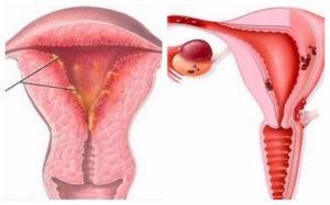 Планирование беременности и хр. Эндометрит+гипоплазия эндометрия