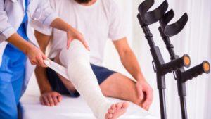 Перелом ноги лечение