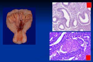 Лечение при диагноз эндометриальный полип с очаговой дисплазией 1 степени