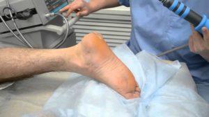 Лечение пяточной шпоры во время перелома
