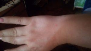 Красные пятна на руке осенью и зимой