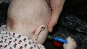 Маленькие шишки за ухом