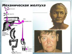Механическая желтуха