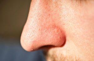 Болезненный прыщ на носу