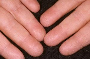 Корост на пальцах рук