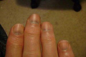 Болит голова, синеет под ногтями, мерзнут руки и ноги