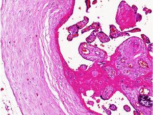 Лечение гиперплазии хориона клексаном