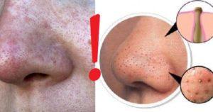Как справится с жиром на носу?