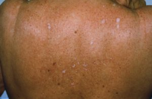 Лечение склеротического лихена схема