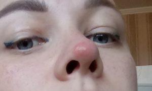 Красные пятна на носу