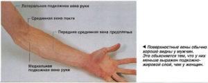 Болит правая рука с внутренней стороны по ходу вены