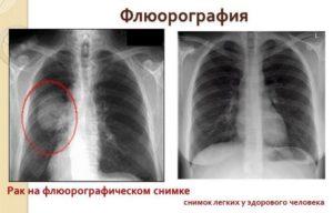 Кто должен расшифровать снимки после рентгена