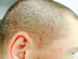Как лечить волдыри на голове?